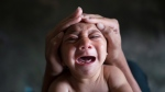 In this Jan. 30, 2016 photo, Elielson tries to calm down his baby brother Jose Wesley, in Bonito, Pernambuco state, Brazil. Jose Wesley was born with microcephaly and he screams uncontrollably for long stretches, getting red in the face and tightening his already stiff limbs. (AP Photo / Felipe Dana)